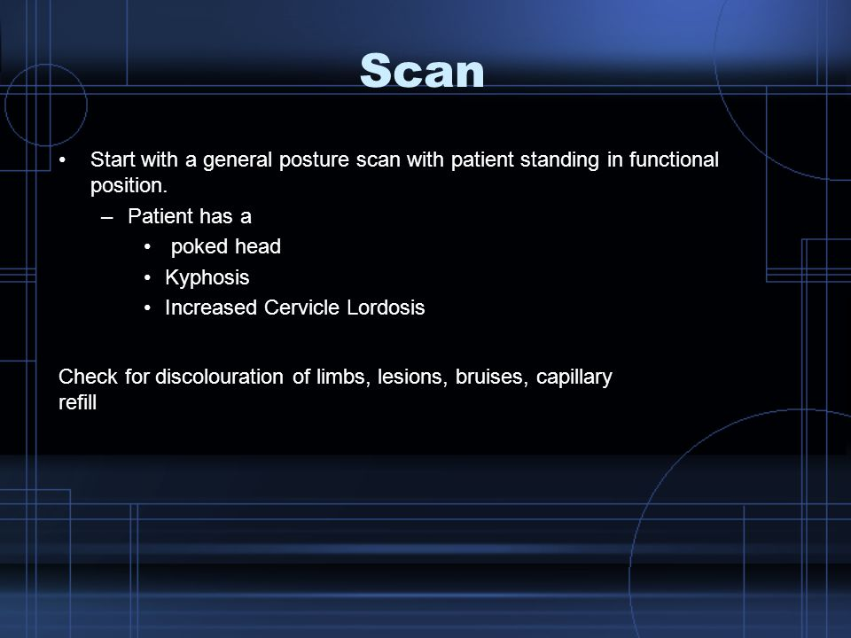 Scan Start with a general posture scan with patient standing in functional position. Patient has a.