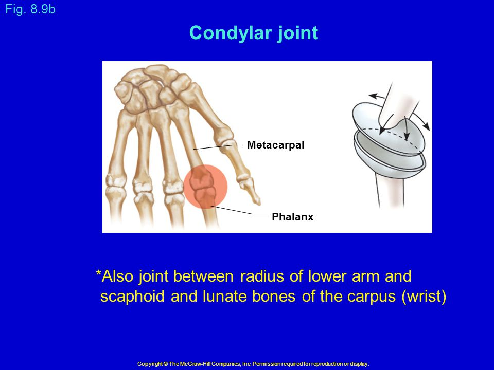 Condylar joint *Also joint between radius of lower arm and