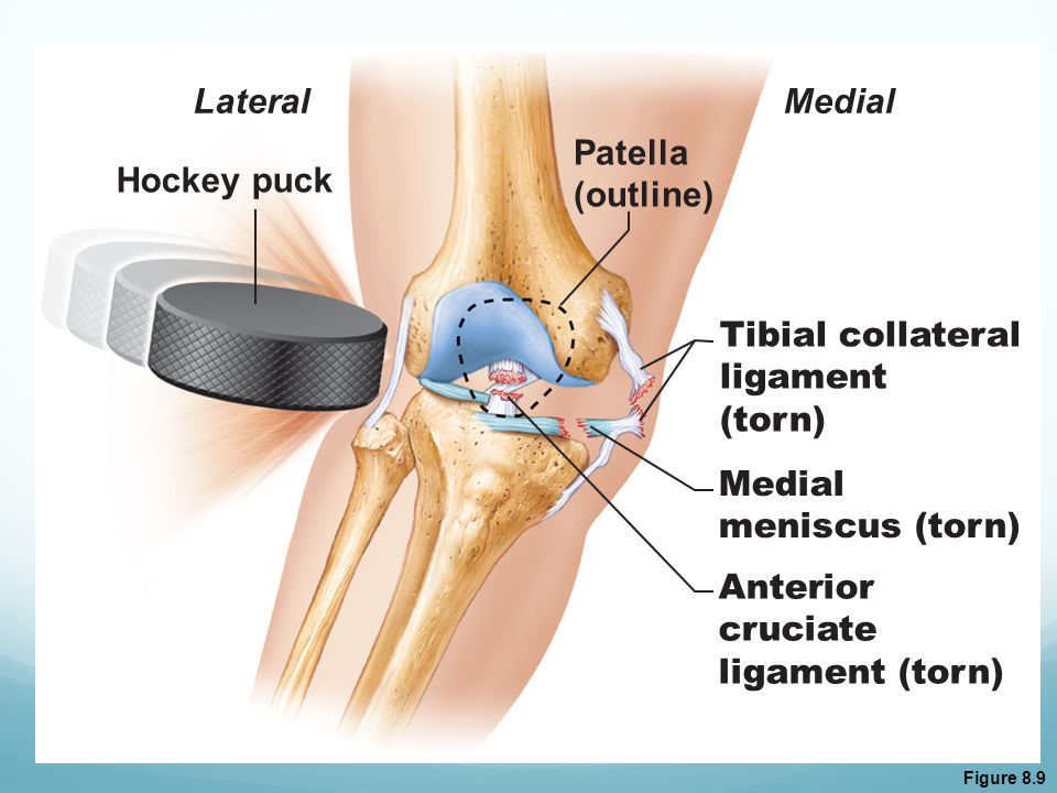 Lateral Medial Patella (outline) Hockey puck Tibial collateral