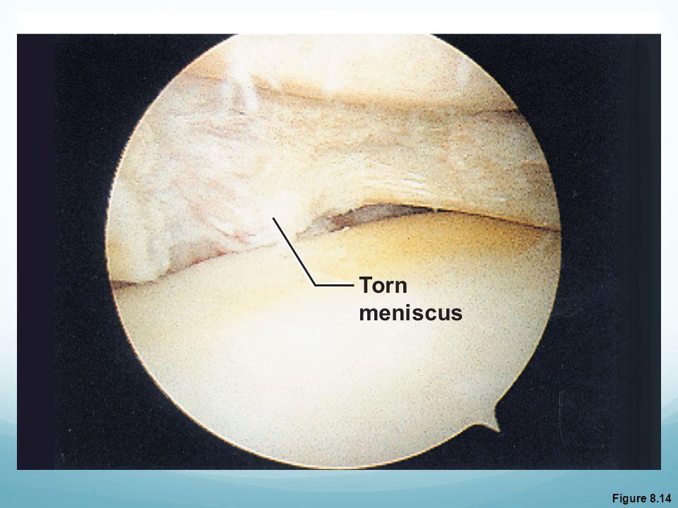 Torn meniscus Figure 8.14