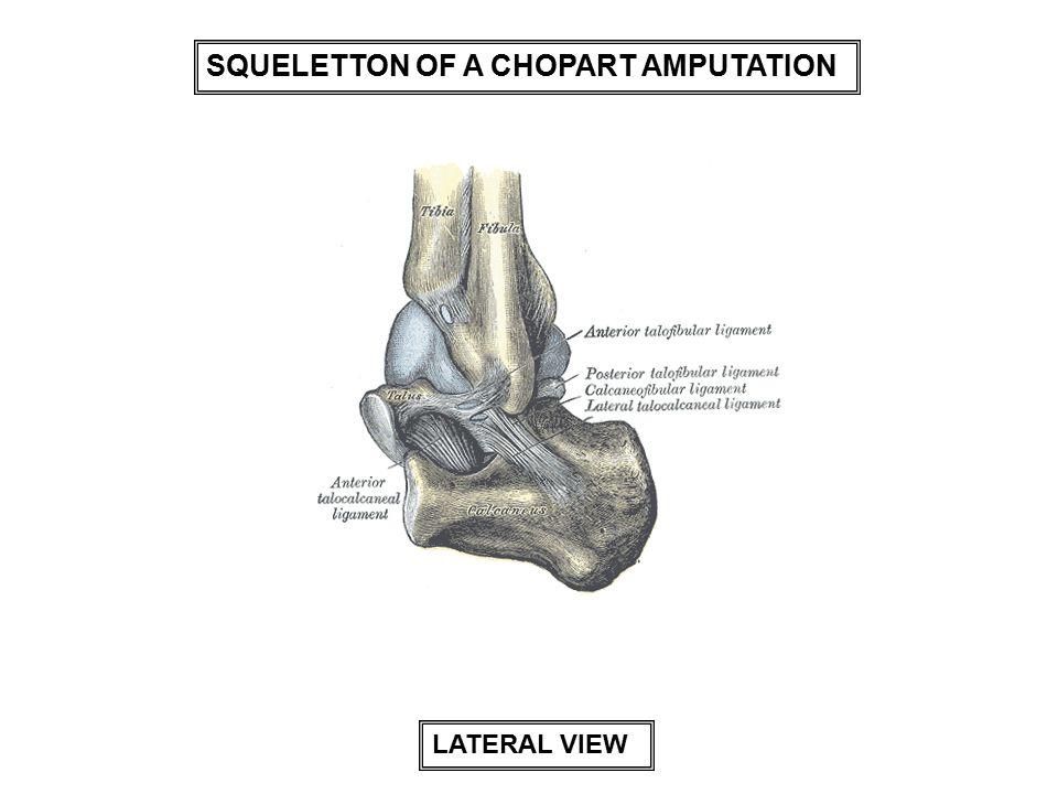 SQUELETTON OF A CHOPART AMPUTATION