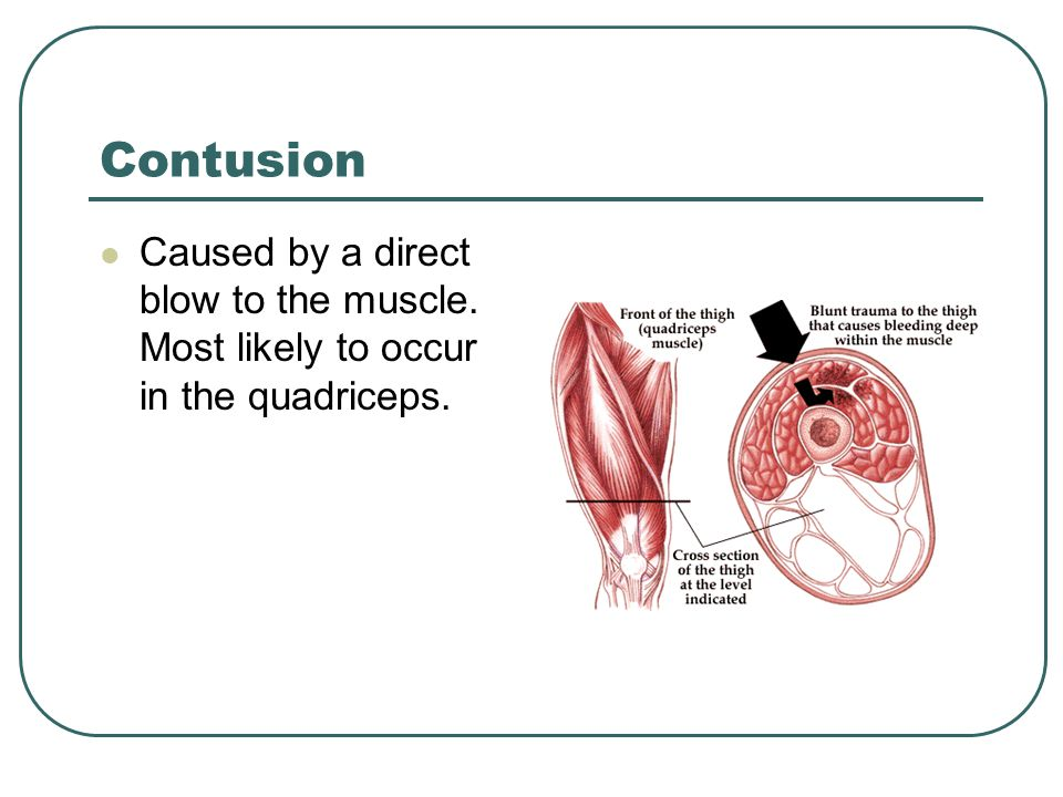 Contusion Caused by a direct blow to the muscle. Most likely to occur in the quadriceps.