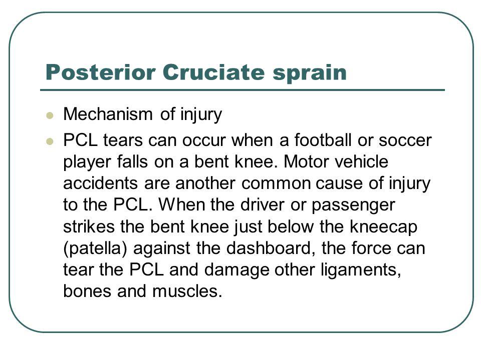 Posterior Cruciate sprain