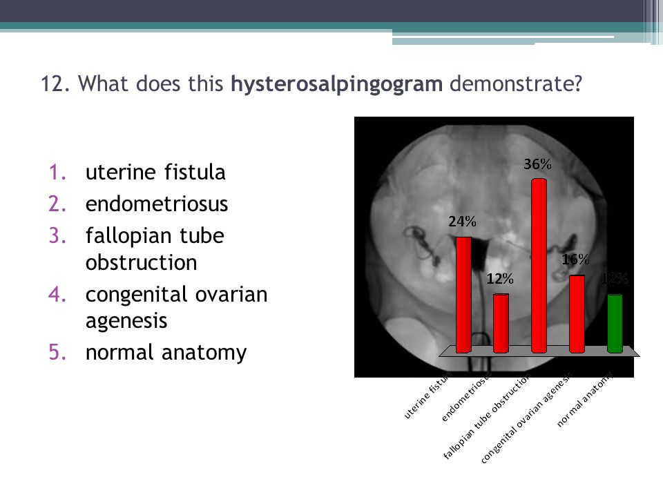 12. What does this hysterosalpingogram demonstrate