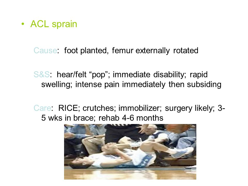 ACL sprain Cause: foot planted, femur externally rotated