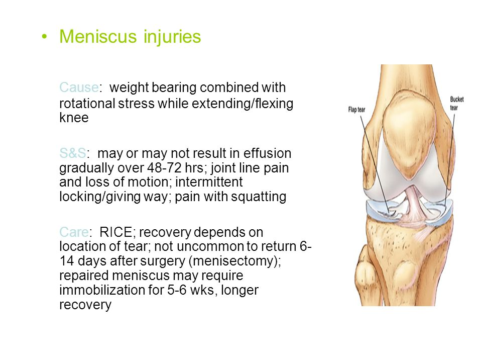 Meniscus injuries Cause: weight bearing combined with rotational stress while extending/flexing knee.