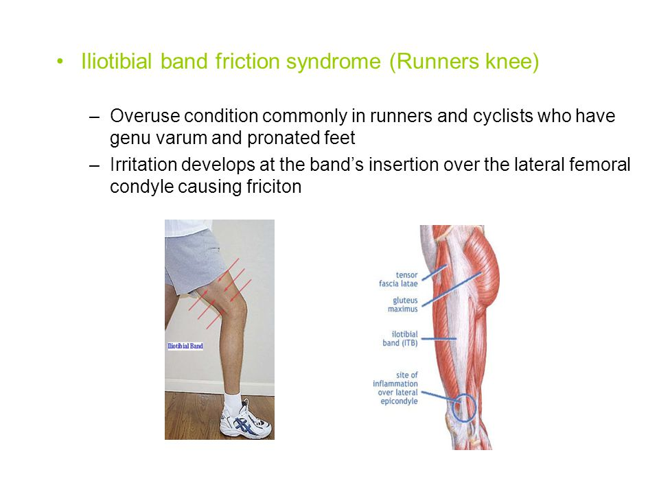 Iliotibial band friction syndrome (Runners knee)