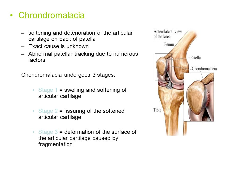 Chrondromalacia softening and deterioration of the articular cartilage on back of patella. Exact cause is unknown.