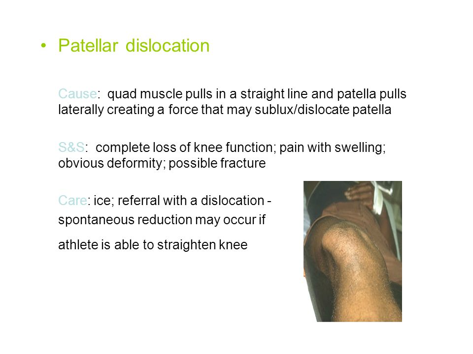 Patellar dislocation Cause: quad muscle pulls in a straight line and patella pulls laterally creating a force that may sublux/dislocate patella.