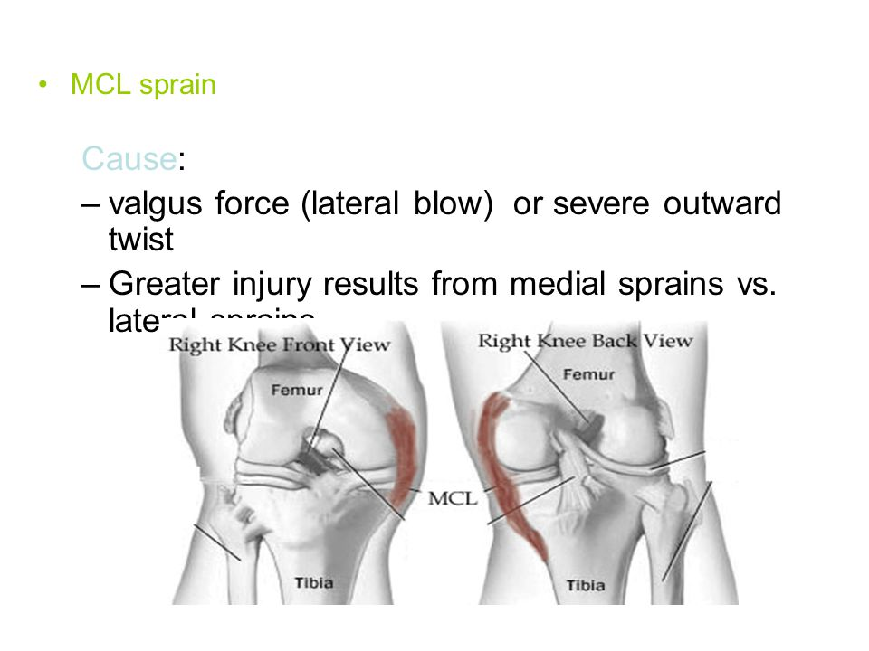 valgus force (lateral blow) or severe outward twist