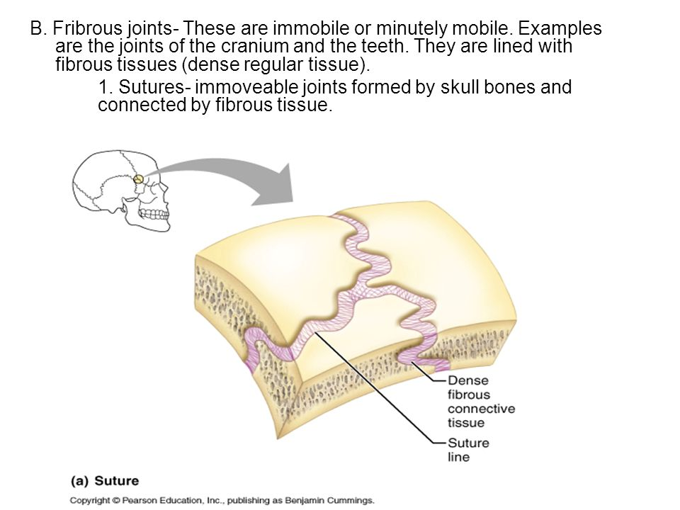 B. Fribrous joints- These are immobile or minutely mobile