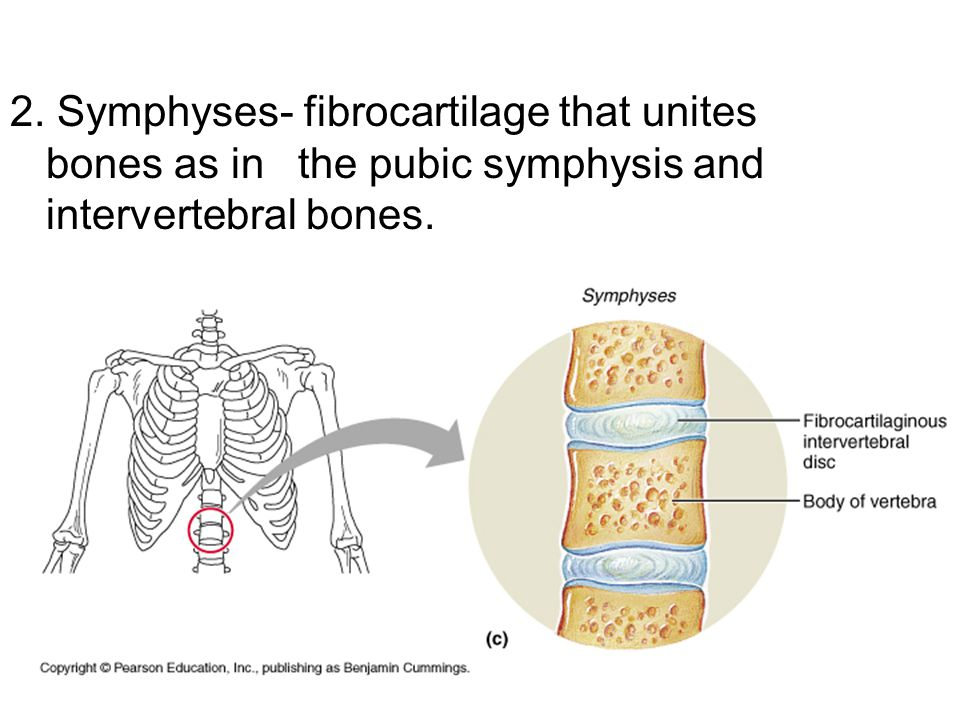 2. Symphyses- fibrocartilage that unites bones as in