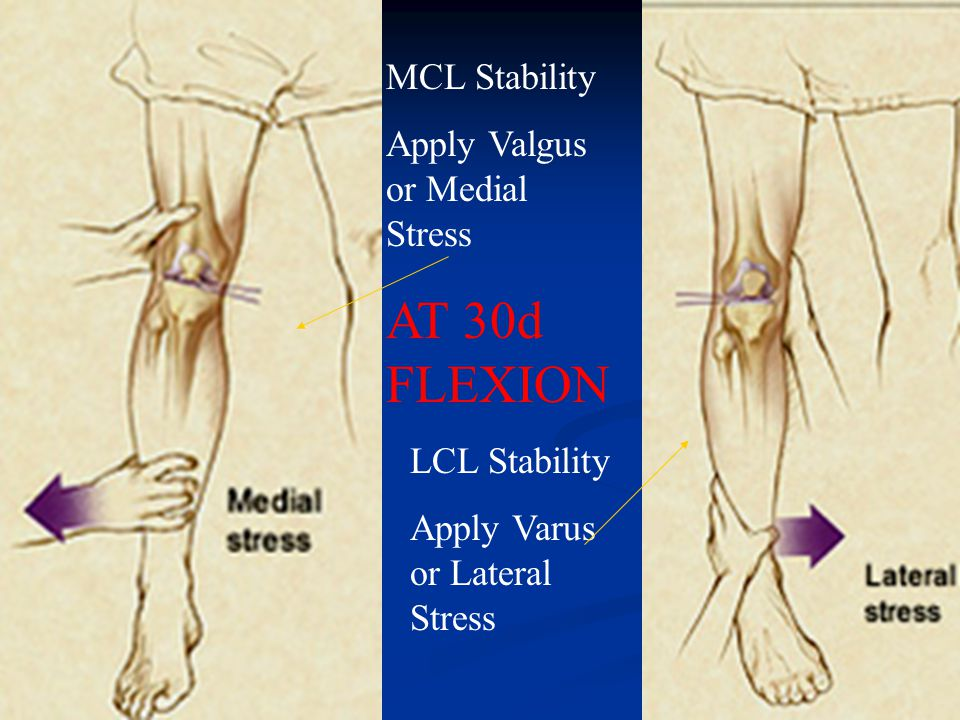 AT 30d FLEXION MCL Stability Apply Valgus or Medial Stress