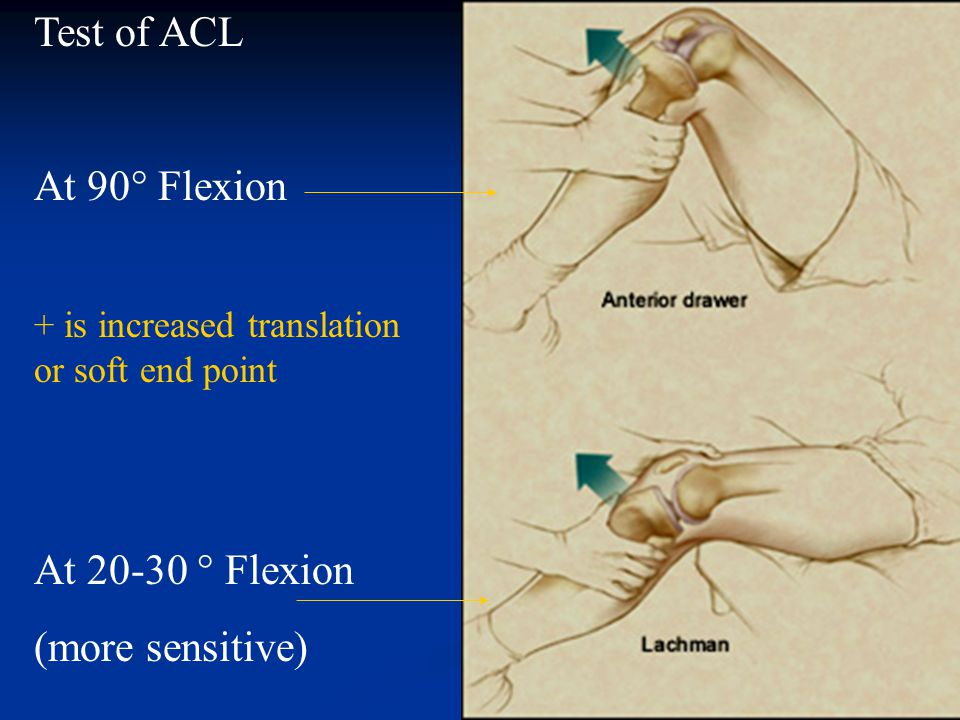 Test of ACL At 90° Flexion At 20-30 ° Flexion (more sensitive)