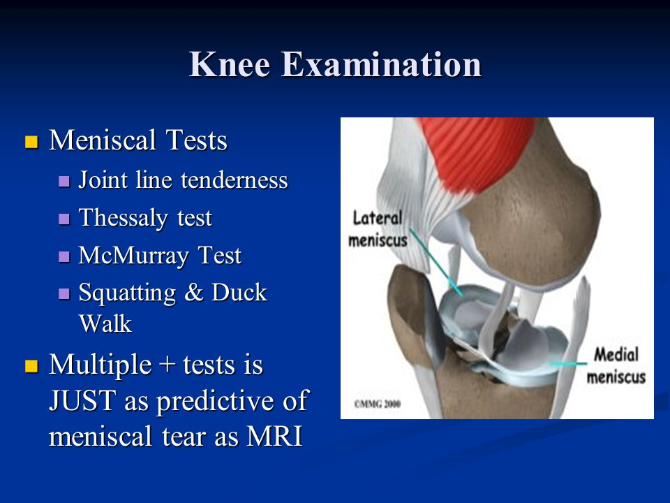 Knee Examination Meniscal Tests