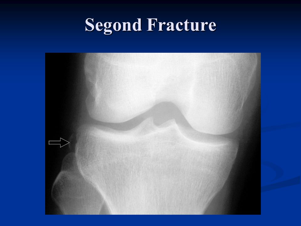 Segond Fracture