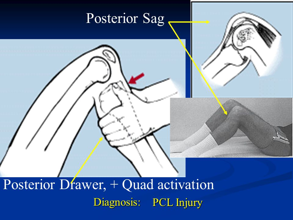Posterior Drawer, + Quad activation
