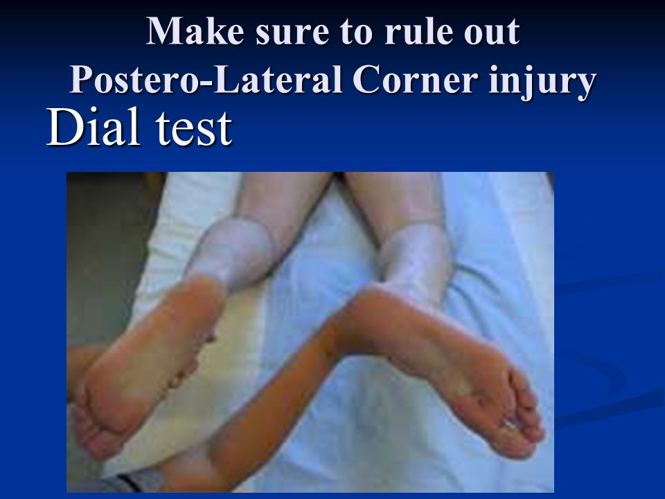 Make sure to rule out Postero-Lateral Corner injury
