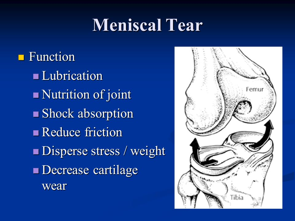 Meniscal Tear Function Lubrication Nutrition of joint Shock absorption