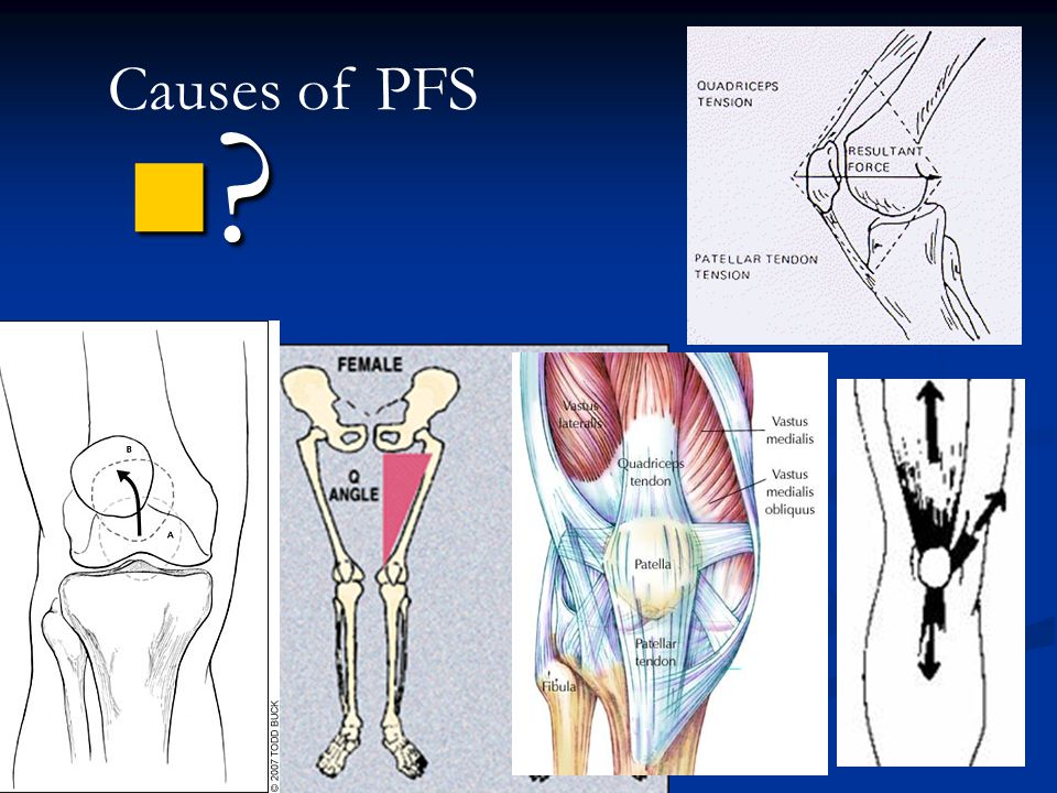 Causes of PFS Theater sign