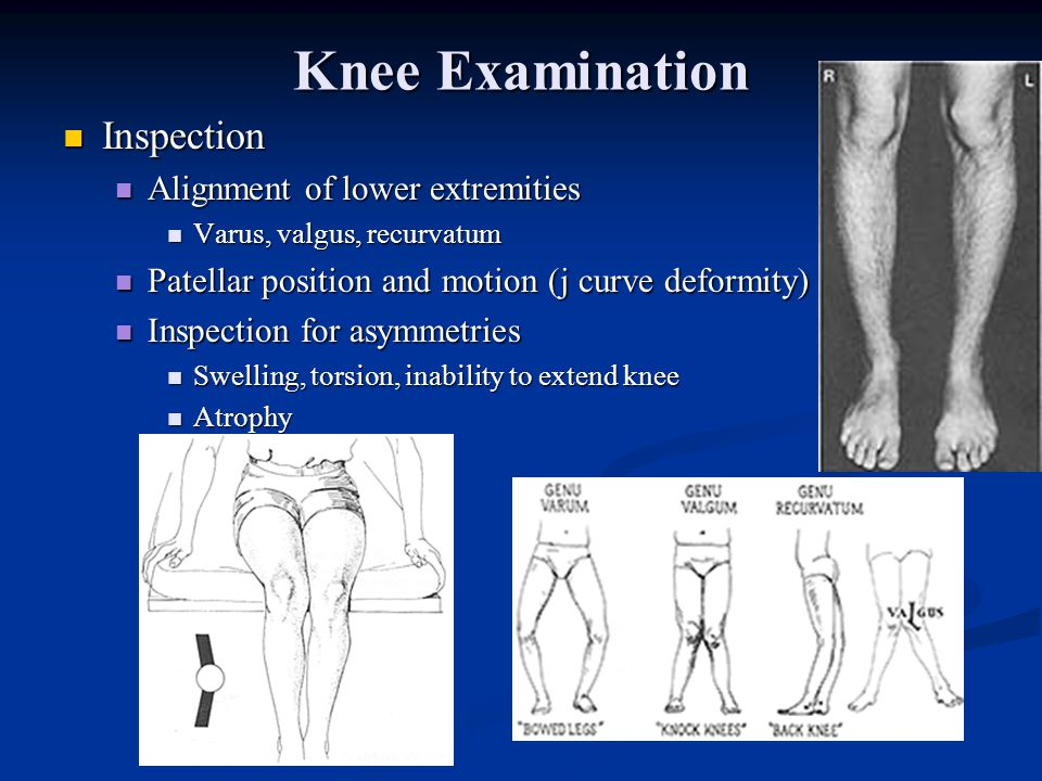 Knee Examination Inspection Alignment of lower extremities