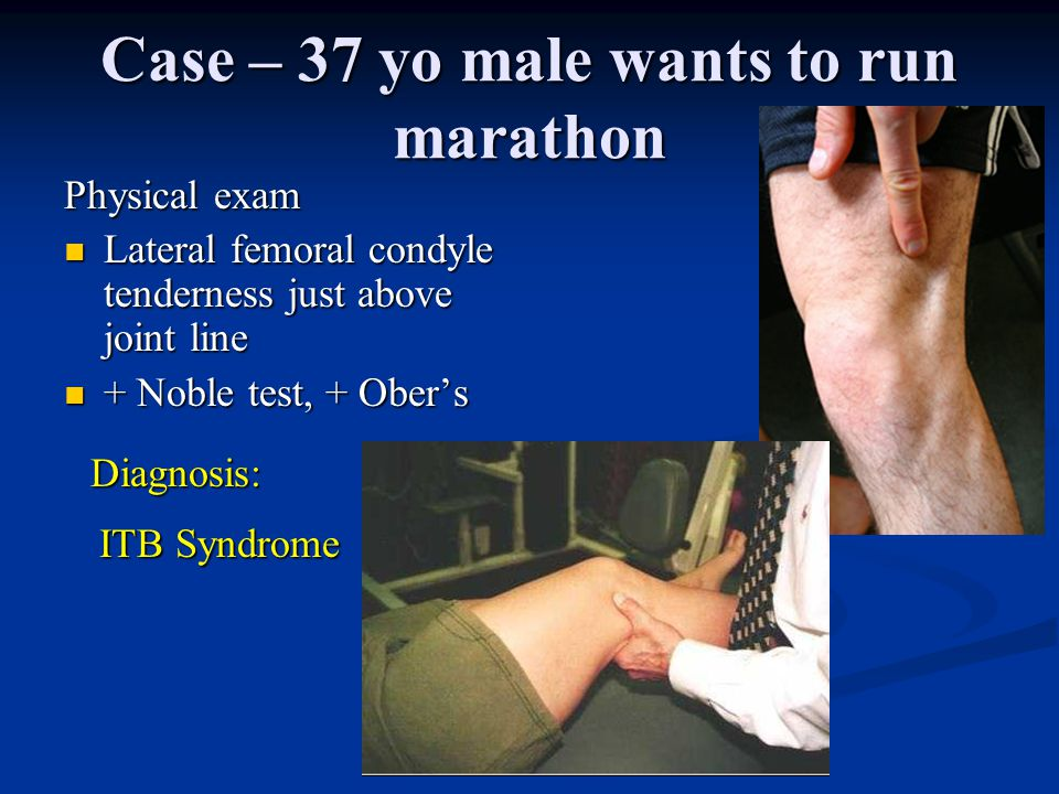 Case – 37 yo male wants to run marathon