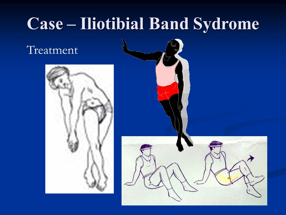Case – Iliotibial Band Sydrome
