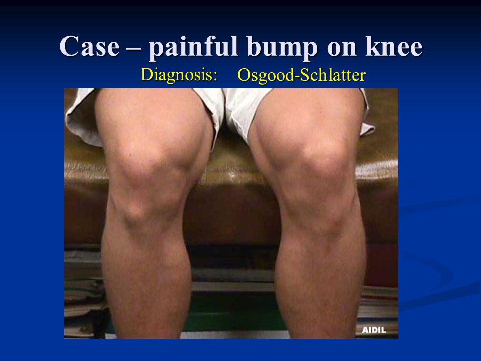 Case – painful bump on knee