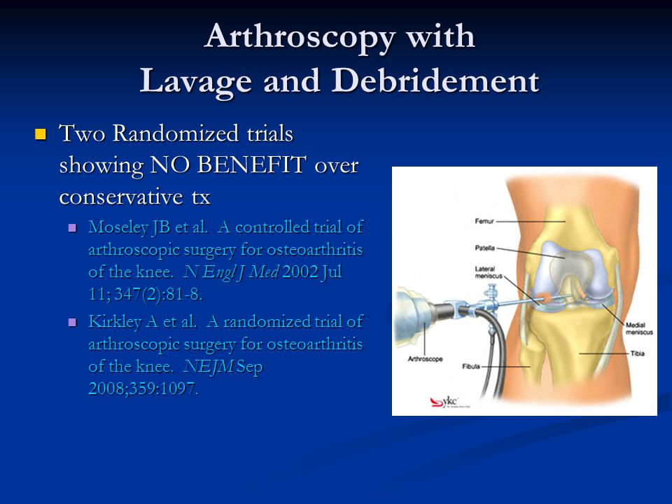 Arthroscopy with Lavage and Debridement