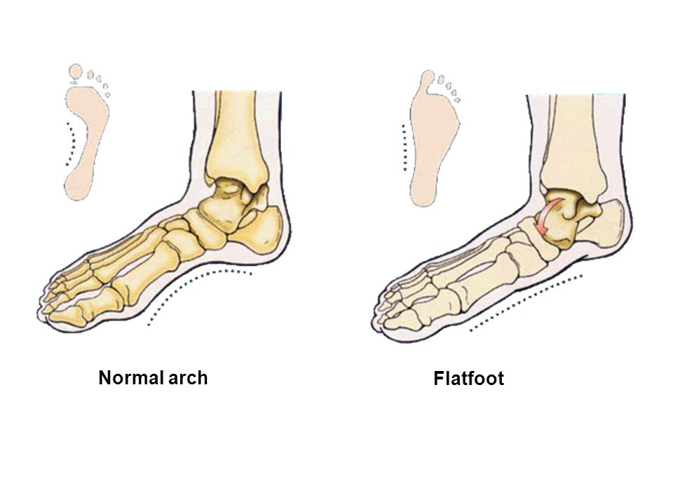 Normal arch Flatfoot