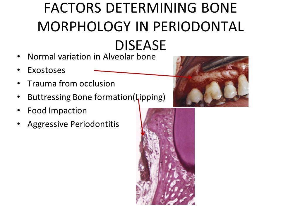 FACTORS DETERMINING BONE MORPHOLOGY IN PERIODONTAL DISEASE