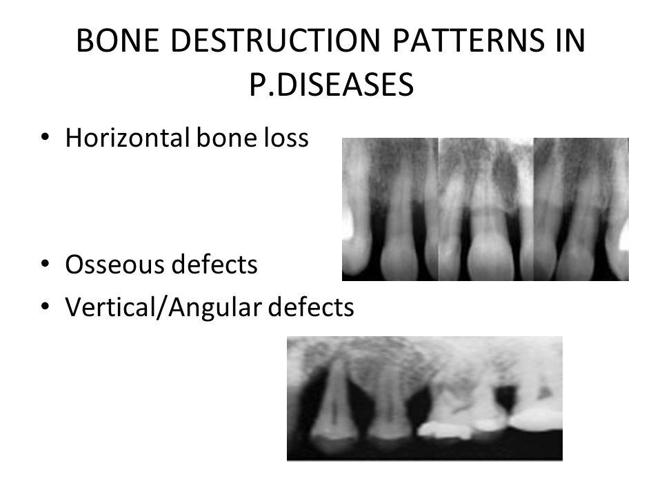 BONE DESTRUCTION PATTERNS IN P.DISEASES