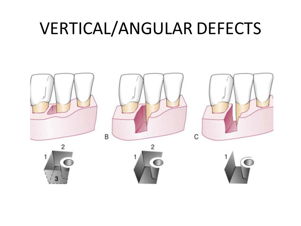 VERTICAL/ANGULAR DEFECTS