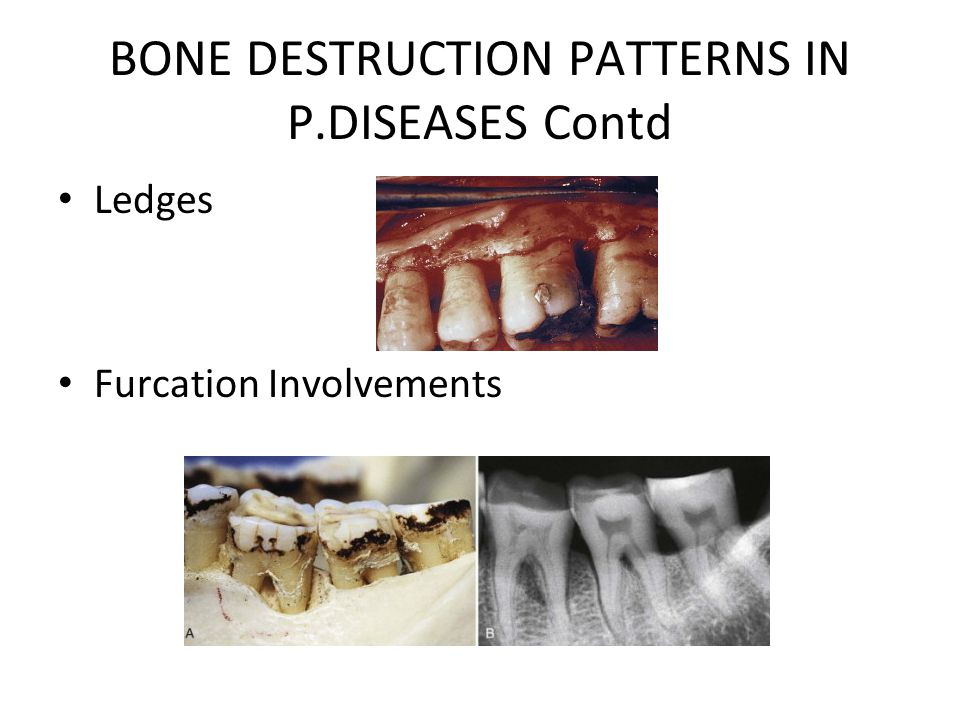 BONE DESTRUCTION PATTERNS IN P.DISEASES Contd