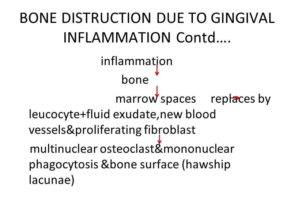 BONE DISTRUCTION DUE TO GINGIVAL INFLAMMATION Contd….