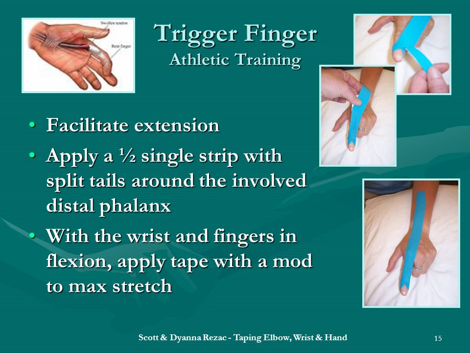 Trigger Finger Athletic Training