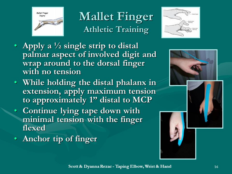Mallet Finger Athletic Training