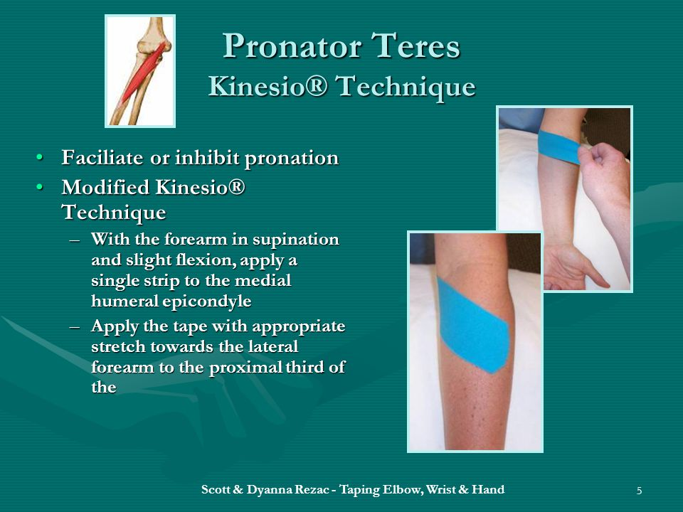 Pronator Teres Kinesio® Technique