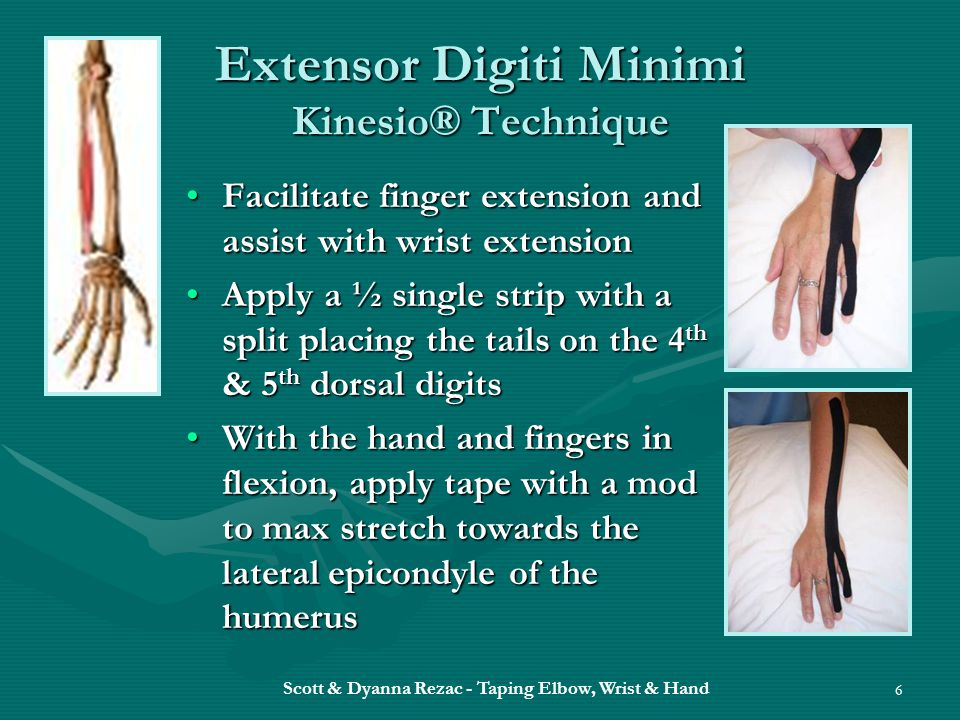 Extensor Digiti Minimi Kinesio® Technique