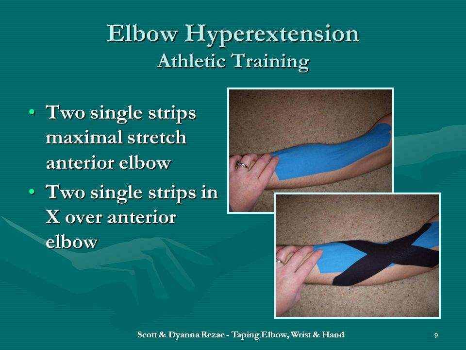 Elbow Hyperextension Athletic Training