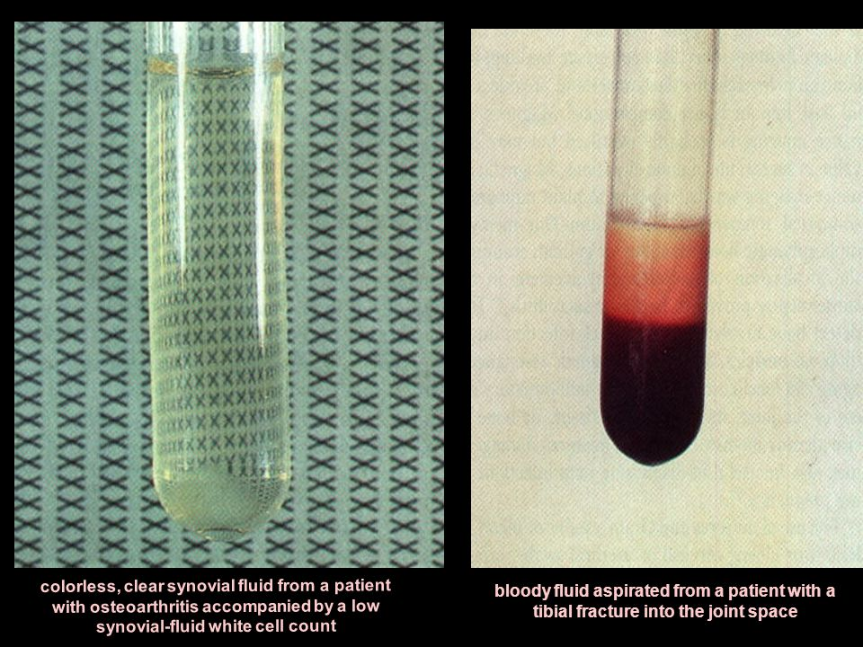 colorless, clear synovial fluid from a patient with osteoarthritis accompanied by a low synovial-fluid white cell count