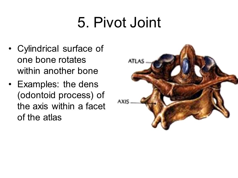 5. Pivot Joint Cylindrical surface of one bone rotates within another bone.