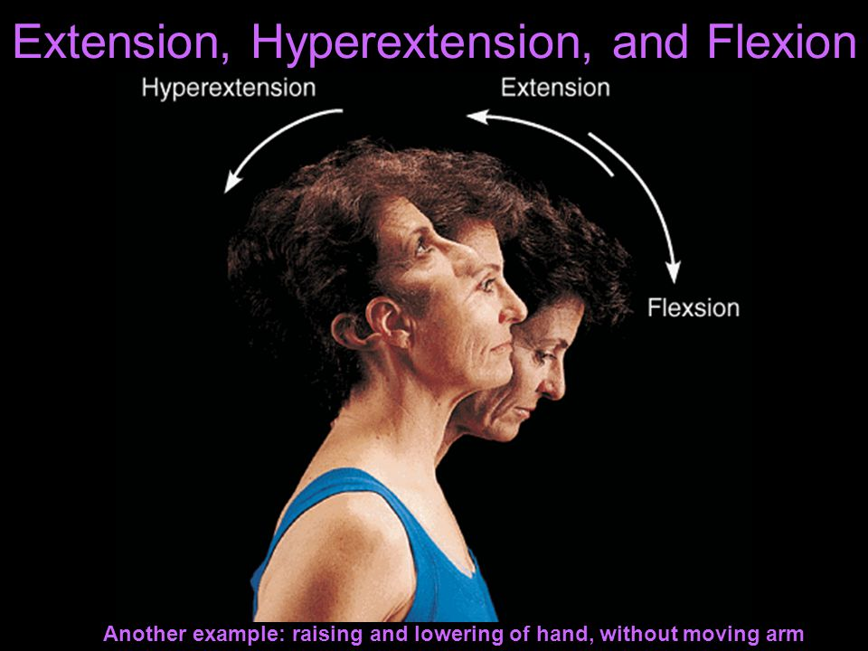 Extension, Hyperextension, and Flexion