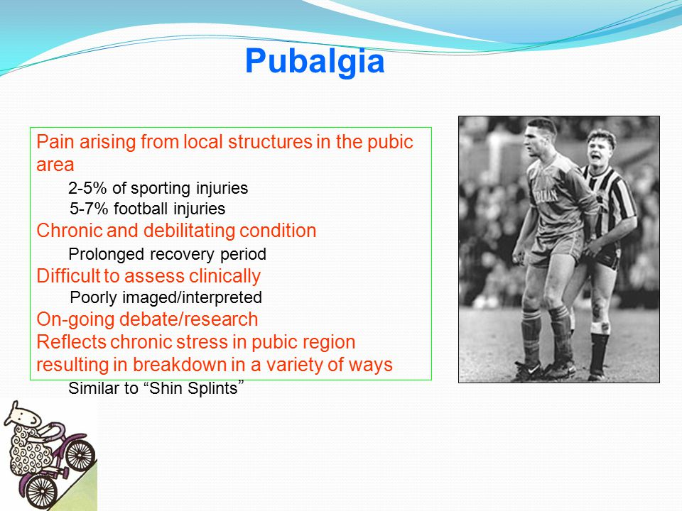 Pubalgia Pain arising from local structures in the pubic area
