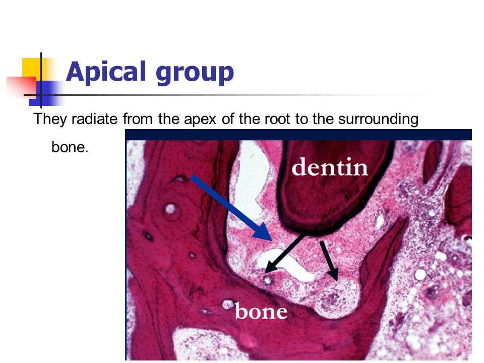 Apical group They radiate from the apex of the root to the surrounding bone.