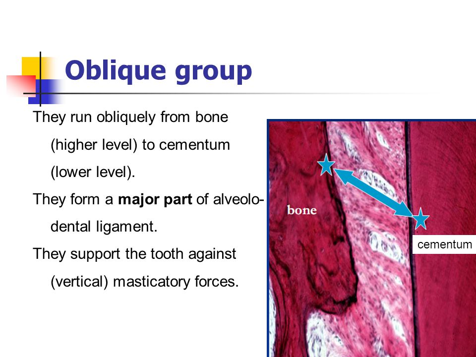 Oblique group They run obliquely from bone (higher level) to cementum (lower level). They form a major part of alveolo-dental ligament.