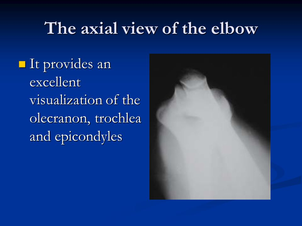 The axial view of the elbow