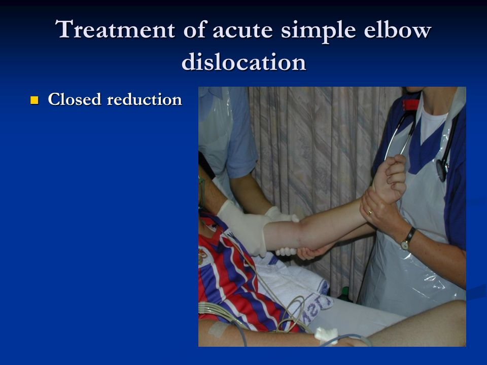 Treatment of acute simple elbow dislocation