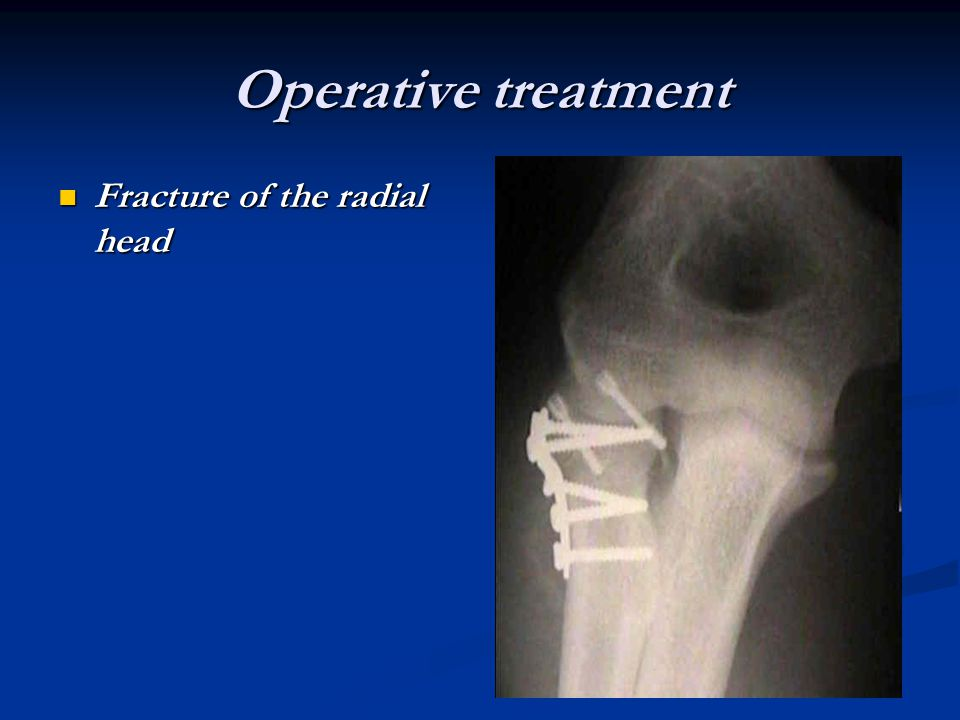 Operative treatment Fracture of the radial head