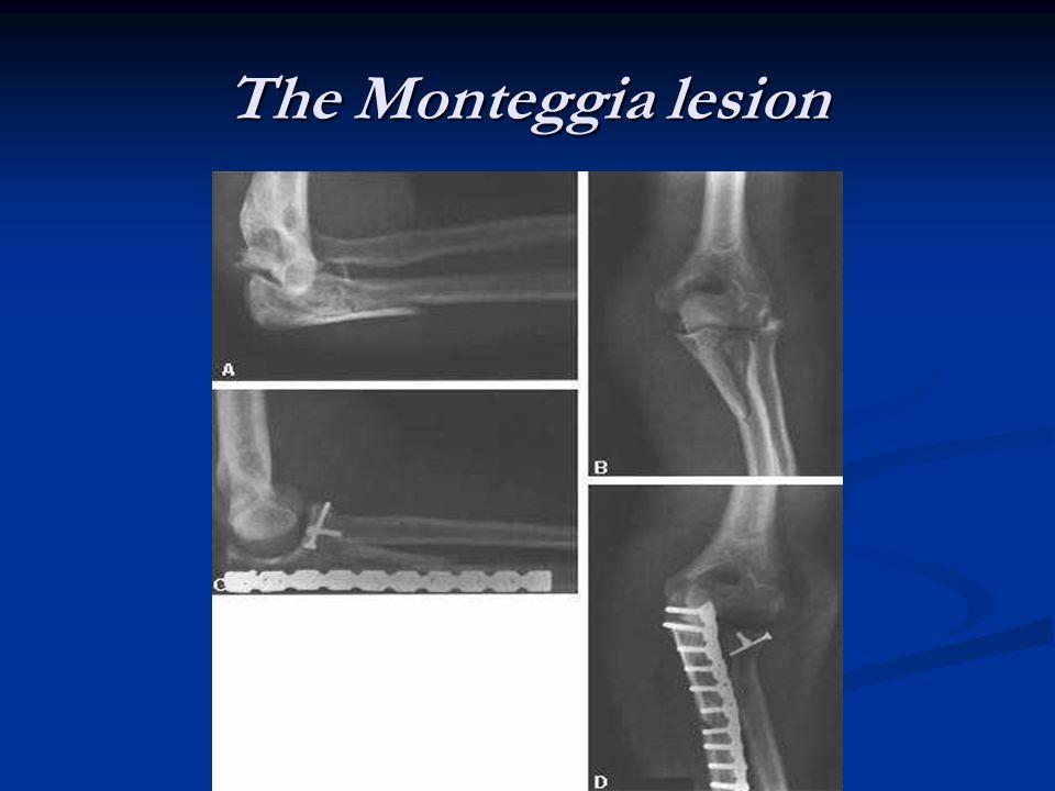 The Monteggia lesion